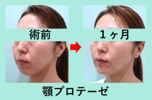 『顎プロテーゼの威力をご覧ください! ダウンタイムもほとんどなし!!』の画像