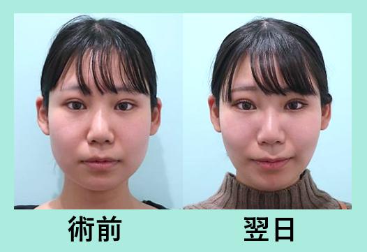 頬と顎下の脂肪吸引+バッカルファット除去_術後翌日ダウンタイム