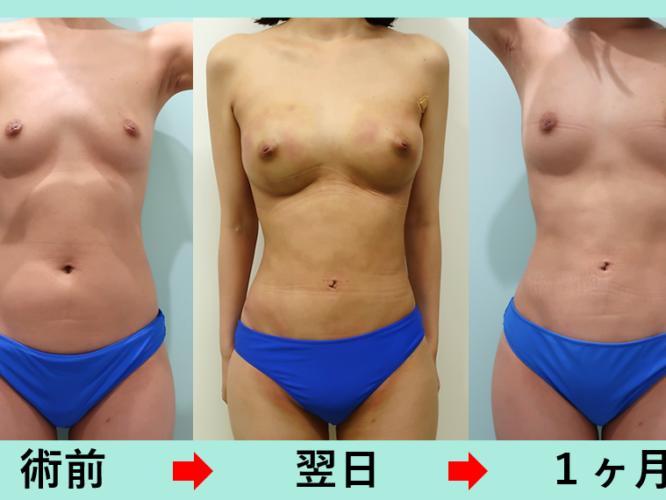 お腹の脂肪吸引_術後1ヶ月ダウンタイム