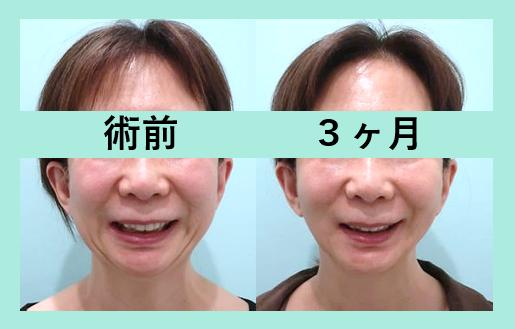 頬と顎下の脂肪吸引+糸リフト_術後3ヶ月ダウンタイム
