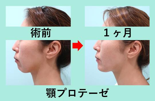 顎プロテーゼ、顔の脂肪吸引_1ヶ月、ダウンタイム、横顔