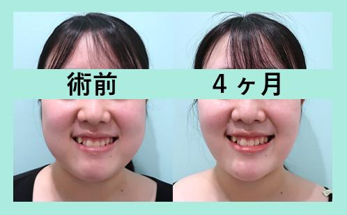 頬と顎下の脂肪吸引+バッカルファット除去_術後4ヶ月