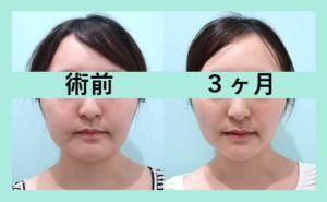 『超高度テクニック! 頬顎メーラーのコンビネーション治療』の画像