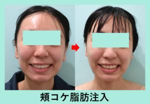 『「 顔痩せ・頬コケ 」には脂肪注入がオススメです!』の画像