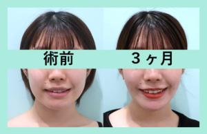『脂肪吸引のみでもしっかり小顔効果を実感できます!』の画像