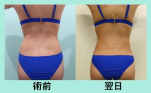 『驚愕の翌日!広範囲、大量脂肪吸引でも、内出血と腫れが驚くほど少ない!』の画像