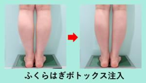 『筋肉質なふくらはぎにはボトックス注射!』の画像