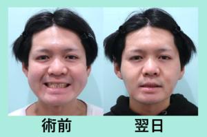 『翌日から変化量大!施術翌日の経過を3人分まとめてご紹介』の画像