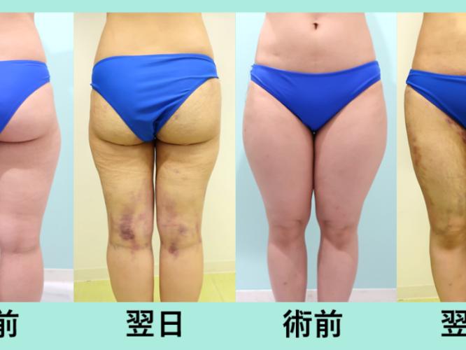 太もも全周脂肪吸引、臀部脂肪吸引_術後翌日ダウンタイム