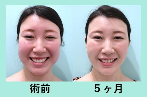 メーラーの脂肪吸引、頬と顎下の脂肪吸引_術後5か月