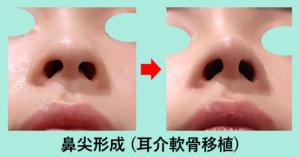 『鼻先を整える「鼻尖形成術」』の画像