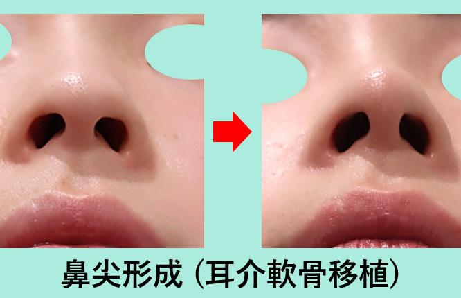 鼻尖形成+耳介軟骨移植_ビフォーアフター