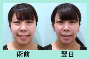 『翌日から嬉しい変化! 吸引+顎先ボトックス』の画像