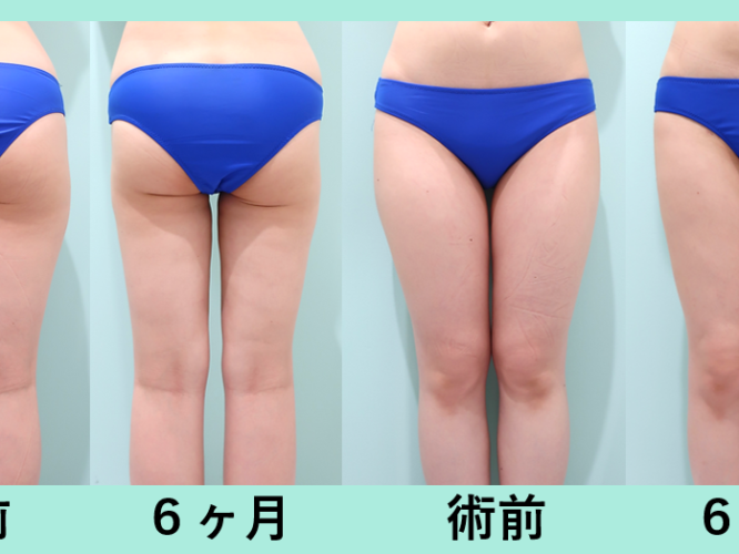 太もも全周脂肪吸引、臀部脂肪吸引_術後6ヶ月ダウンタイム