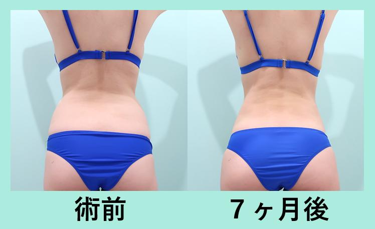腹部全体脂肪吸引+胸下脂肪吸引+腰脂肪吸引_術後7ヶ月