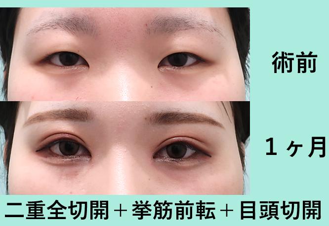 二重全切開、眼瞼下垂挙筋短縮術_術後1ヶ月、ダウンタイム