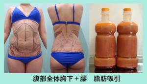 『攻めの脂肪吸引!「 カリカリにしてください 」と言うご要望も引き受けます』の画像