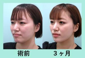 『お手軽なのに嬉しい変化! 顎先ボトックス』の画像