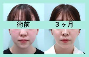 『頬顎マイクロリポ法の完成形見せます!』の画像