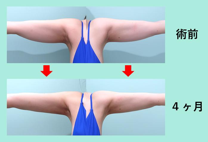 二の腕肩付け根脂肪吸引+副乳+ベイザー_術後4ヶ月ダウンタイム、弛まない