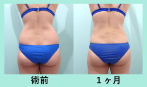 『腰だけの脂肪吸引 30万円 でここまで変われる!!』の画像