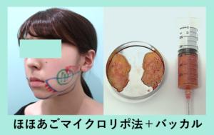 『結果にコミット きっちり細くします! 脂肪吸引とバッカルのコンビネーション』の画像