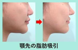 『マニアックな「 顎先 」の脂肪吸引』の画像