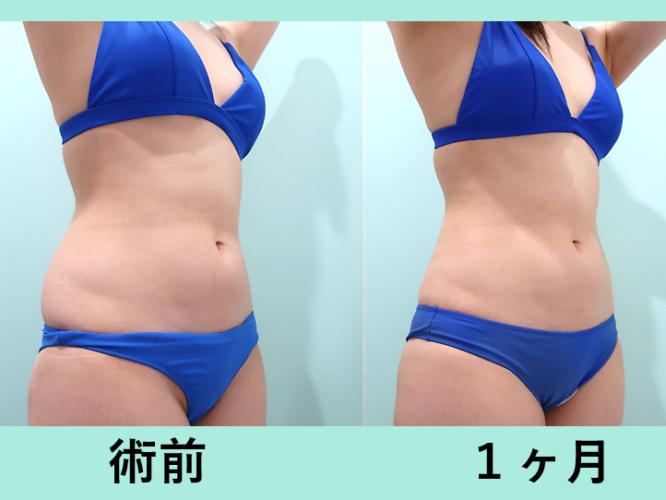 腰の脂肪吸引_術後1ヶ月ダウンタイム、くびれ