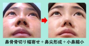 『「鼻骨骨切り+鼻尖形成+小鼻縮小」限界まで鼻を縮小します!』の画像