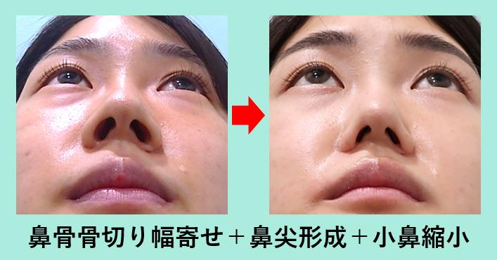 鼻骨骨切り幅寄せ、忘れ鼻_ダウンタイム鼻骨骨切り幅寄せ、忘れ鼻_ダウンタイム