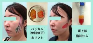 『高難易度「 バッカルファット除去+脂肪注入 」の組み合わせ治療』の画像