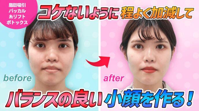 顔の脂肪吸引、Youtube、サムネイル