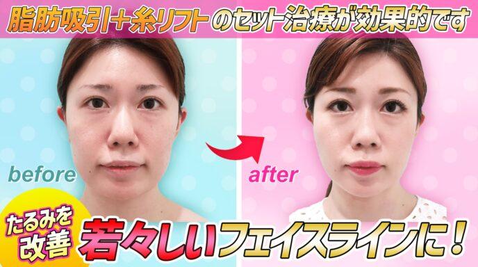 頬と顎下_脂肪吸引_糸リフト
