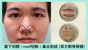 『これぞベテランDrの技「重たい瞼」と「太い鼻先」が眠っている間にスッキリ!』の画像