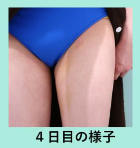 『クマ治療と涙袋形成で健康的で若々しい目元に!』の画像