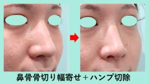 『「 骨切り幅寄せ術 + ハンプ切除 」で鼻骨の存在感を無くします!』の画像