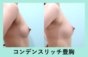 『豊富な症例数! 自分の脂肪による豊胸でナチュラルなバストアップを!』の画像
