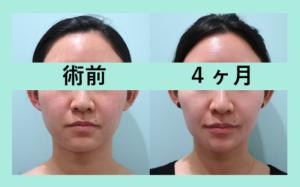 『小顔脂肪吸引ビフォーアフター 3名まとめてご紹介』の画像
