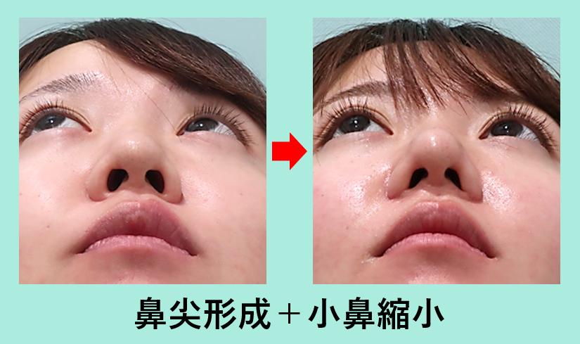 鼻尖形成、小鼻縮小_ビフォーアフター、ダウンタイム