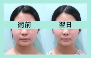 『顔の脂肪吸引 がっつり脂肪を取った翌日の経過をご覧あれ!』の画像