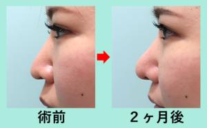 『実録!鼻尖形成と人中短縮の組み合わせで理想の鼻に!』の画像