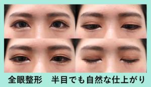 『全眼整形!半端ない変化量!半目状態でも自然な仕上がりです』の画像