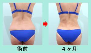 『驚愕の美ボディーを当院独自の匠の脂肪吸引技術で作り上げます!』の画像