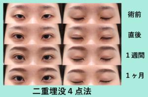 『窪み目改善、目の開きもぱっちり埋没法』の画像