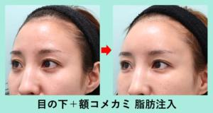 『注入だけでここまで印象が変わる! 「 目の下・額・こめかみ 」への脂肪注入』の画像