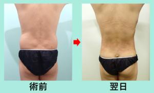 『男性も必見!衝撃の胴回り一周、カリカリ脂肪吸引の翌日ドキュメント』の画像