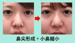 『「最小限の鼻尖形成(耳介軟骨移植なし)」+「小鼻縮小術」でナチュラルな変化を!』の画像