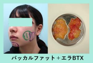 『顔のがっちり感がすっきり!バッカルファット除去+エラボトックス』の画像
