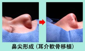 『耳介軟骨移植を併用した「 鼻尖形成術 」』の画像