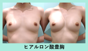 『BMI18以下の痩せ型の方には「 ヒアルロン酸豊胸 」がお勧めです☆』の画像